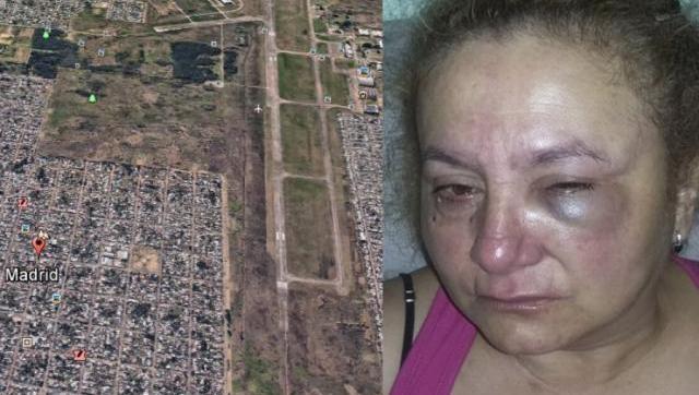 Desfiguran a una mujer para robarle la cartera en Castelar Sur