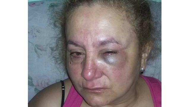 La vecina de Castelar a la que robaron y desfiguraron: