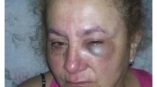 """La vecina de Castelar a la que robaron y desfiguraron: """"Tengo mucho miedo de salir a la calle"""""""